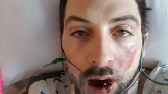 GRAPHIC: Man Claims That His E-Cigarette Exploded In His Face And The Photos Are Horrifying