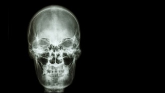 The World's First Human Head Transplant Was Just Completed On A Corpse, Which Is Not At All Horrifying