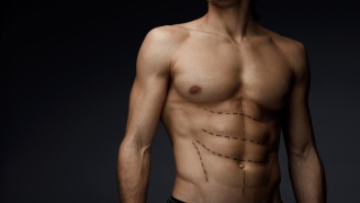 These Are The 5 Most Common Plastic Surgery Procedures For Men