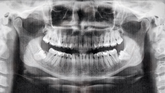 7-Year-Old Boy Has 526 Teeth Removed After Experiencing Pain In His Jaw