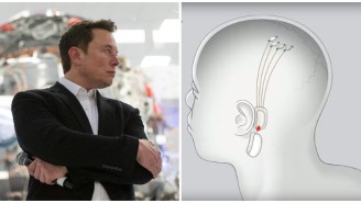 Elon Musk's Brain-Implant Company Plans To Unveil Working Device This Week