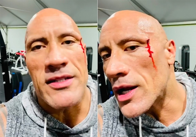 The Rock Gym Accident
